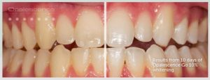 Opalescence Go Take Home Whitening Results