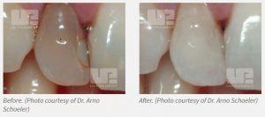Opalescence Endo Non-Vital Walking Bleach Results